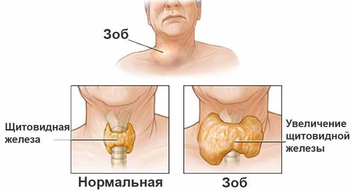 Зоб щитовидной железы симптомы и лечение народными средствами